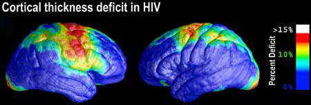 HIV brain scan